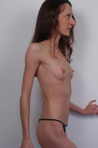 Anorexia Bbs Porn Pictures 82